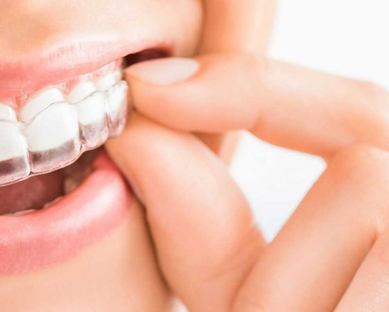 All About Accelerated Orthodontics!