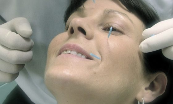 Acupuncture In Dentistry